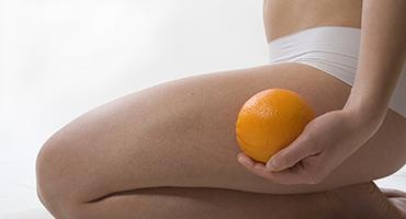 Comment agir sur la cellulite ?