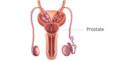 L'hypertrophie bénigne de la prostate : qu'est-ce que c'est ?
